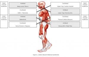 Janda's Syndromes. Image Credit - www.jandapproach.com